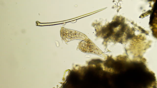 microorganism - stentor - biology stock videos & royalty-free footage