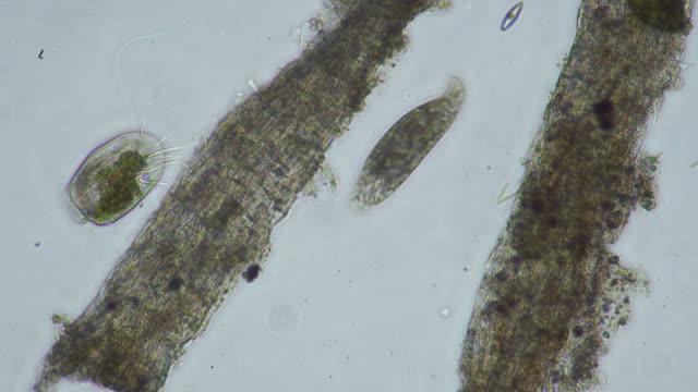 stockvideo's en b-roll-footage met micro-organisme - high scale magnification