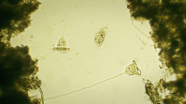 stockvideo's en b-roll-footage met microorganism - vorticella - high scale magnification