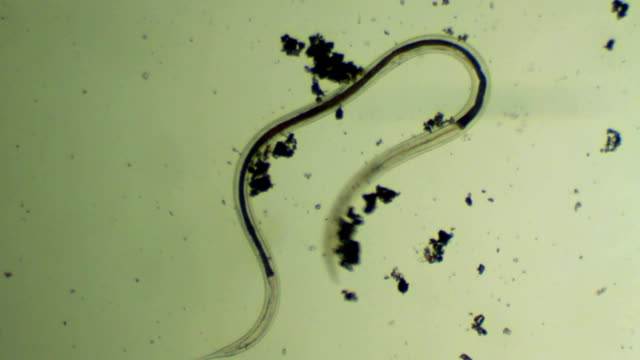 stockvideo's en b-roll-footage met micro-organisme - worm - high scale magnification