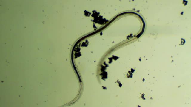 微生物-蠕虫 - high scale magnification点の映像素材/bロール