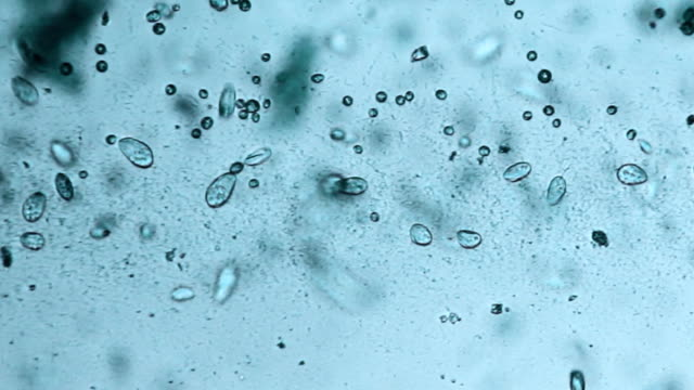 stockvideo's en b-roll-footage met microorganisms - paramecium - colony