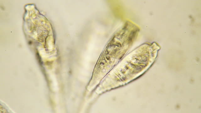 microorganisms - ciliate scyphidia - scientific micrograph stock videos and b-roll footage