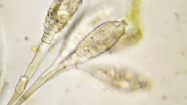 microorganisms - ciliate scyphidia - ciliate stock videos and b-roll footage