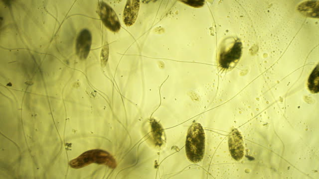 microorganisms: euplotes - bacterium stock videos and b-roll footage