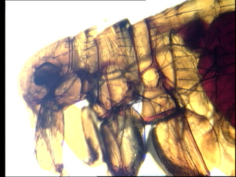 a microscope reveals an internal mass in the body of a flea. - flea insect stock videos and b-roll footage