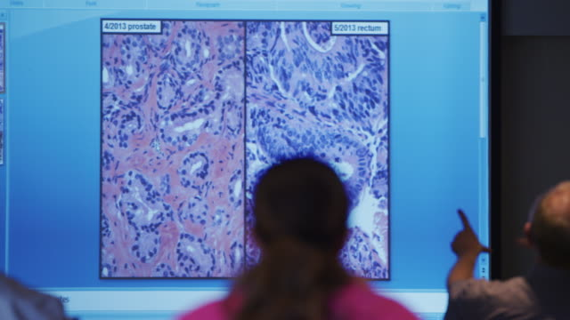 Microscopic cancerous cell slides of prostate and rectum projected on screen in oncology physician conference.