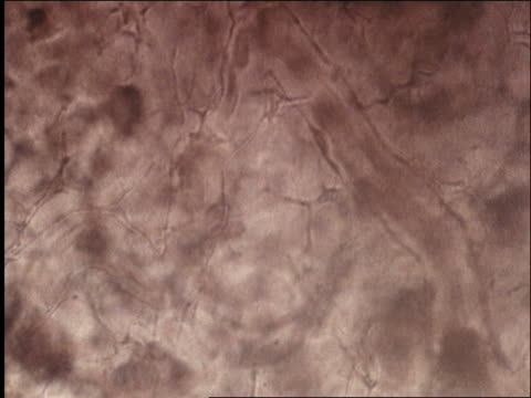 microscopic - human blood circulation / aids the virus - human blood stock videos and b-roll footage