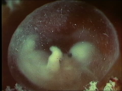 Microscopic - human embryo in sac at 2 months (3-5 cm) / First Days of Life