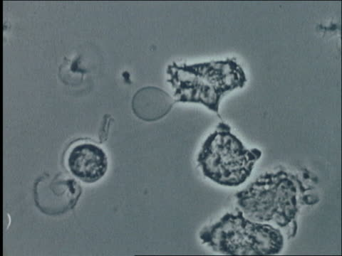 stockvideo's en b-roll-footage met microscopic - human macrophages / aids the virus - vergroting