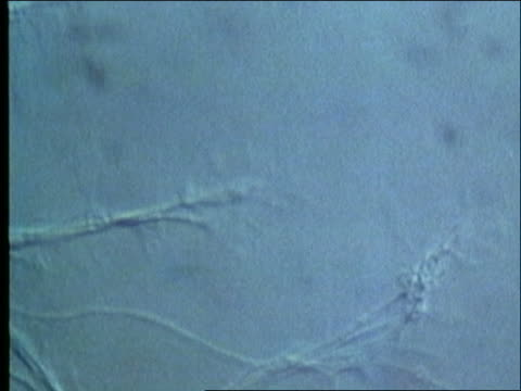 microscopic - human nerve-muscle contacts - human muscle stock videos & royalty-free footage