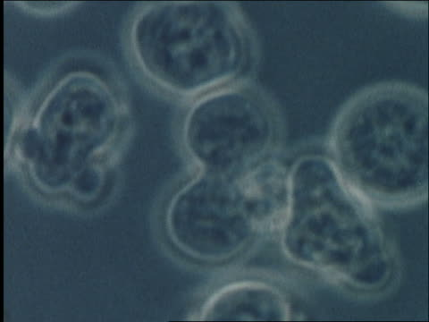 microscopic - human white blood cells (lymphocytes) / aids the virus - 白血球点の映像素材/bロール