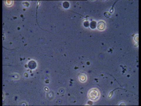 microscopic shot of sperm mauve filter - spermium stock-videos und b-roll-filmmaterial