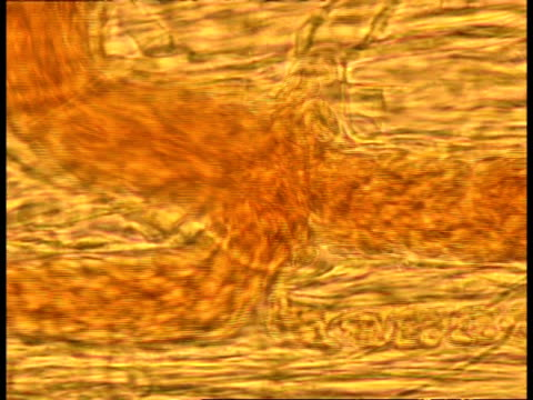 microscopic view of blood cells moving through blood vessels - artery stock videos & royalty-free footage