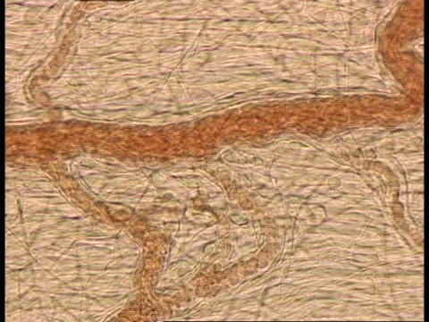 microscopic view of blood cells moving through blood vessels - globulo rosso video stock e b–roll