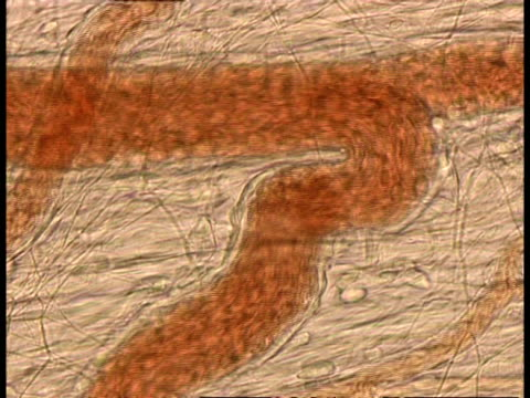 Microscopic view of blood cells moving through blood vessels