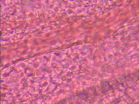 microscopic view of blood cells moving through veins  - 白血球点の映像素材/bロール