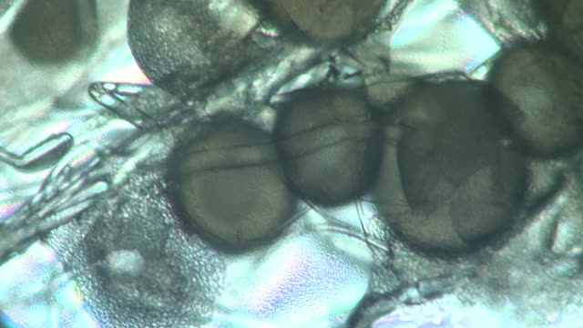 Microscopic view of bread mould, the fungal hyphae and broken sporangia or spore capsules are visible revealing a mass of released spores.