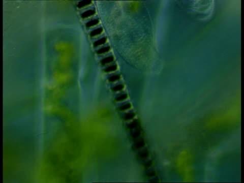 Microscopic view of Ciliates and filamentous algae in background