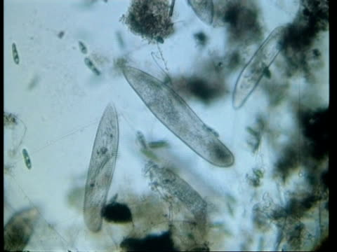 cu microscopic view of paramecium, stentor and euglena - animale microscopico video stock e b–roll
