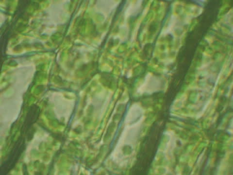 Microscopic view of plant cells with chloroplasts, chlorophyll-containing plastid