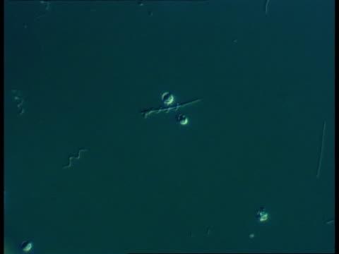 microscopic view of spirochaete bacteria - らせん菌点の映像素材/bロール