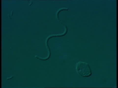 microscopic view of static spirochaete bacteria - らせん菌点の映像素材/bロール