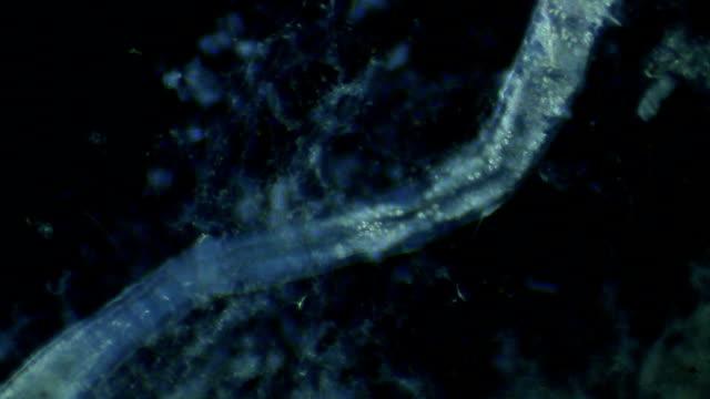 microscopic worm - oligochaeta naididae - animale microscopico video stock e b–roll