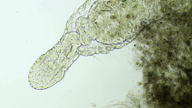 mikroskopisch kleine wurm - oligochaeta naididae - mikrobiologie stock-videos und b-roll-filmmaterial