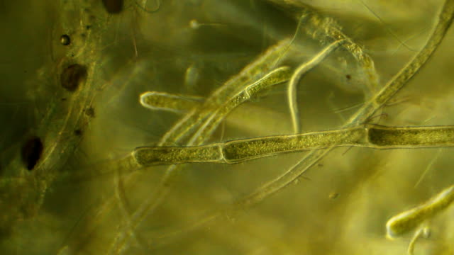 stockvideo's en b-roll-footage met microscopic worms, plants - high scale magnification