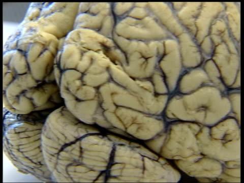 cs model of brain pan cs dna strands as seen on screen - francis crick stock videos & royalty-free footage