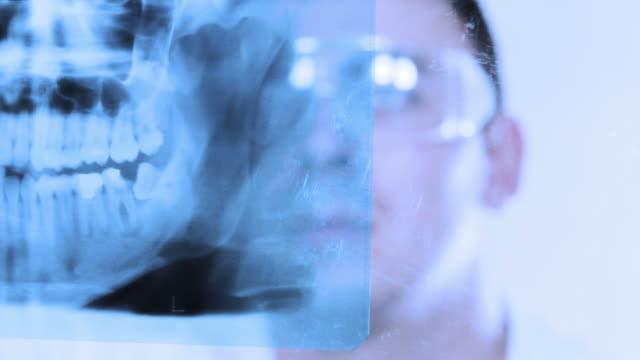 vídeos de stock e filmes b-roll de modern x-ray image. dentist reserch. - dedo humano