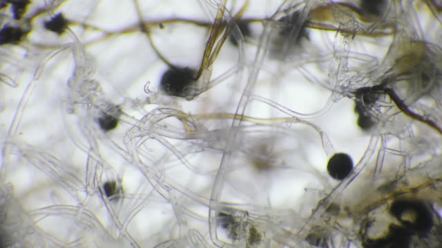 mold under microscope - human mouth stock videos & royalty-free footage