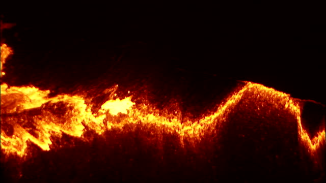 Molten lava bubbles and bursts through surface crust in volcano crater. Available in HD.