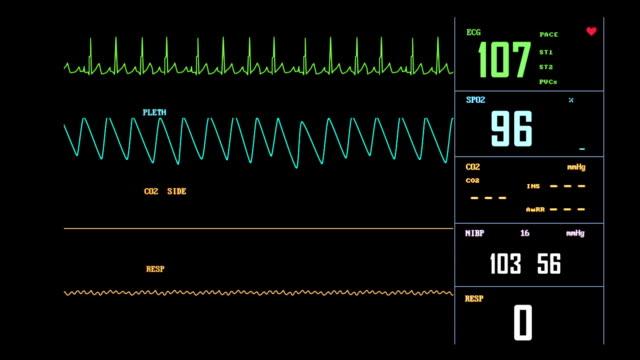 ECG Monitor - Loop Stock Video