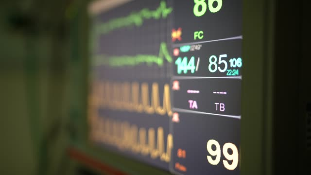 monitor of vital signs in the operating room - diagnostic medical tool stock videos & royalty-free footage