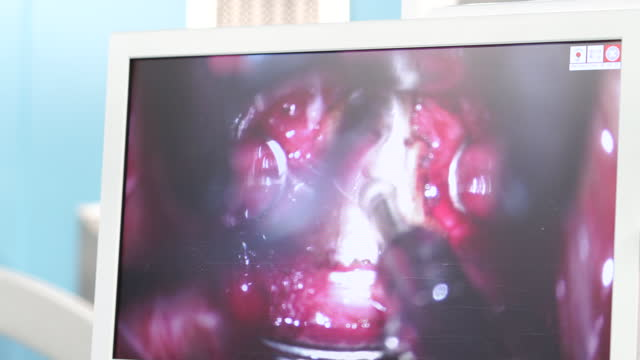 monitor screen of herniated disk surgery - spine stock videos & royalty-free footage