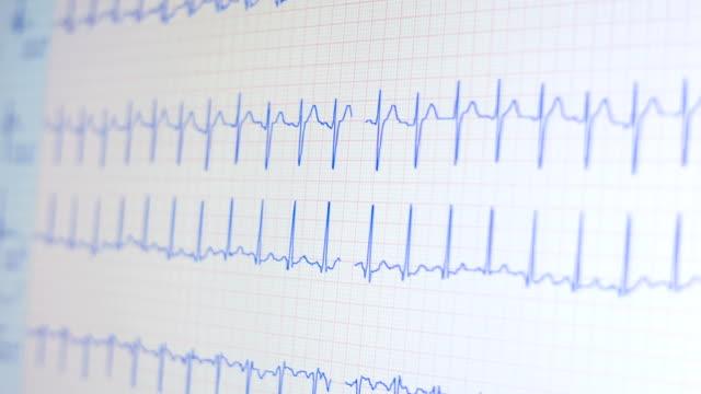 monitorare mostrando cuore e battito beat - misurare il polso video stock e b–roll