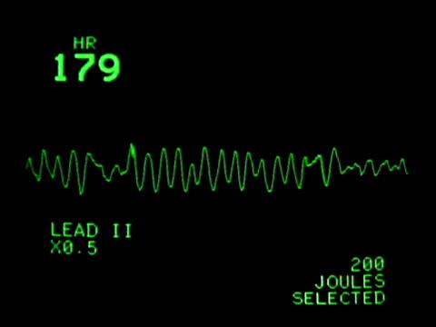 vídeos de stock, filmes e b-roll de ecg (electrocardiogram) monitor showing heart rate and heartbeat - batimento cardíaco