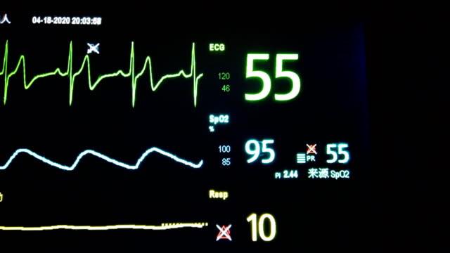 ekg-monitor - lyssna på hjärtslag bildbanksvideor och videomaterial från bakom kulisserna