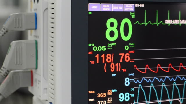 ecg monitor - medical instrument stock videos and b-roll footage