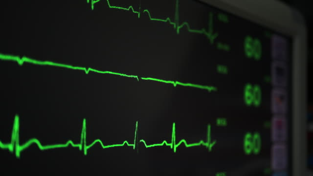ecg monitor - listening to heartbeat stock videos & royalty-free footage