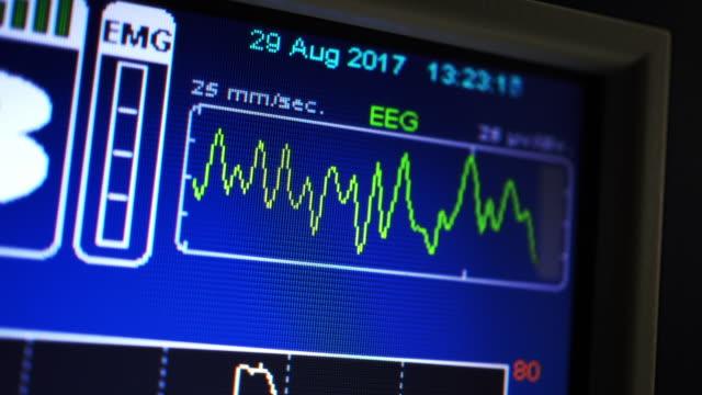 EEG monitor