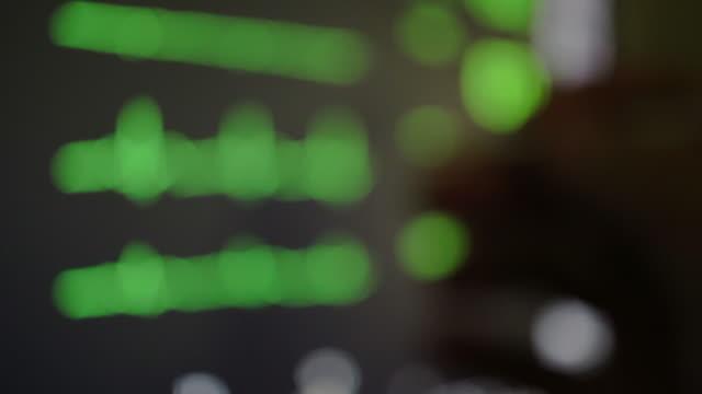ecg monitor - reparto di terapia intensiva video stock e b–roll