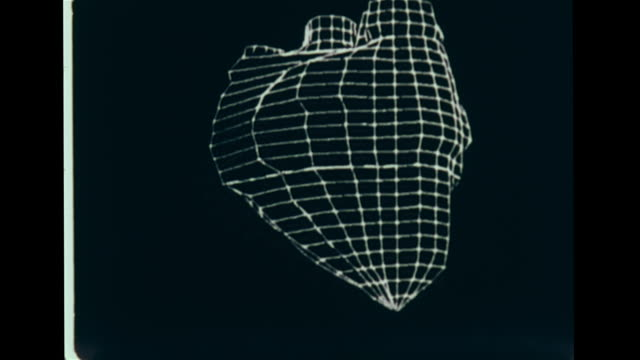 monitor w/ large graph line drawing model of beating human heart, rotating forward, back& around in circle, early medical imaging. health... - human back stock videos & royalty-free footage