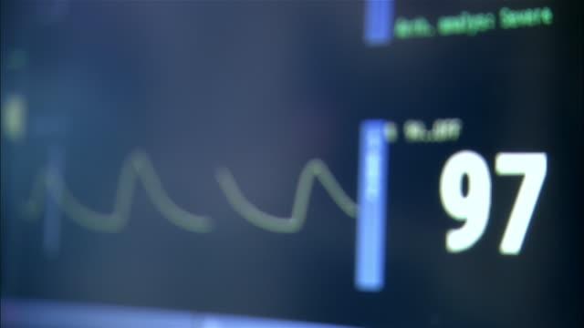 ecg monitor waveforms  - övervakningsutrustning bildbanksvideor och videomaterial från bakom kulisserna