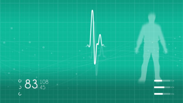 monitoring vital signs - heart attack stock videos & royalty-free footage