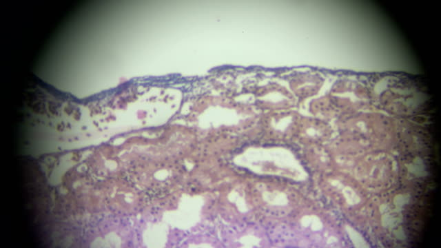 monolayer cubical epithelium view in microscopy - esophagus stock videos & royalty-free footage