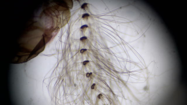 mosquito-male under microscopy - mosquito stock videos & royalty-free footage