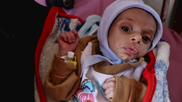 mother carries her malnourished child while he receives treatment at a malnutrition center on october 20, 2020 in sana'a, yemen. due to the nearly... - yemen bildbanksvideor och videomaterial från bakom kulisserna